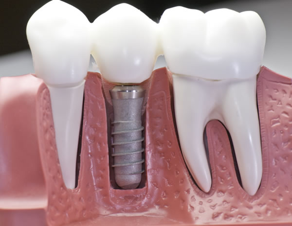 dental-vortex-implanti