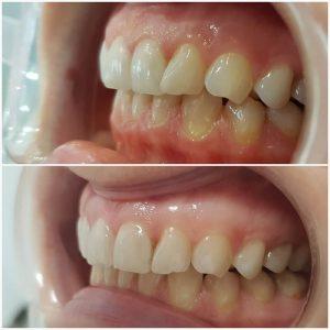 Ispravljanje-zuba-folijama1