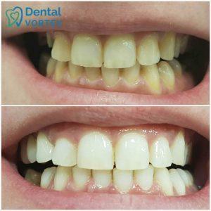 izbeljivanje-zuba