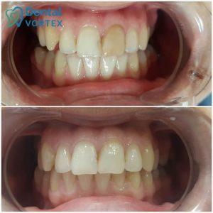 izbeljivanje-avitalnog-zuba