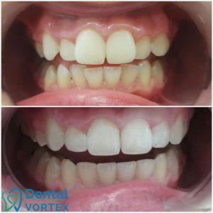 ispravljanje-zuba-providnim-filijama