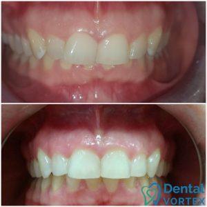 ispravljanje-zuba