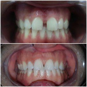 ispravljanje-zuba-folijama2