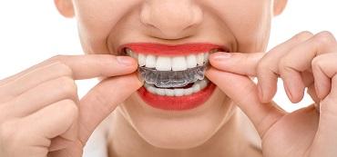 folije-za-ispravljanje-zuba