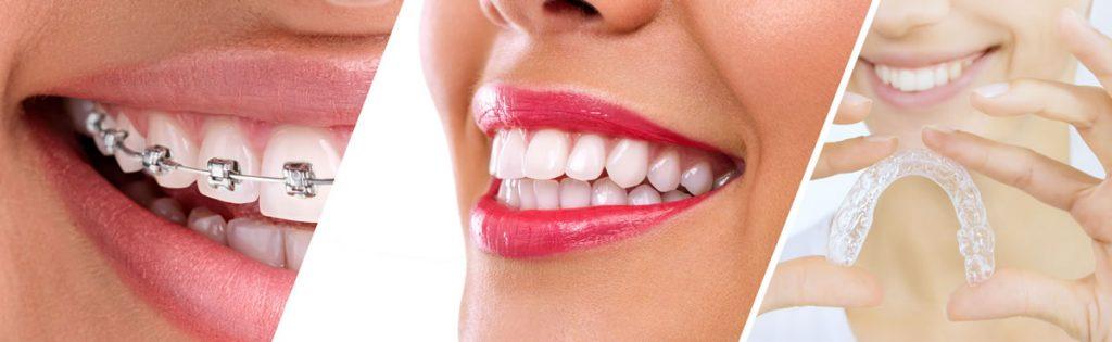 fiksna-proteza-ili-folije-za-ispravljanje-zuba