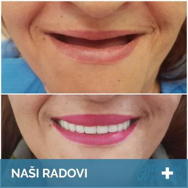 nasi-radovi-zubni-implanti