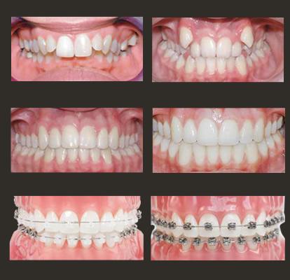 ortodonska-terapija-damon-sistem-pre-posle