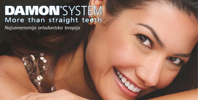 ortodonska-terapija-damon-sistem