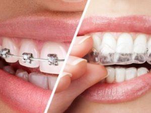 fiksna-proteza-i-folija-za-ispravljanje-zuba