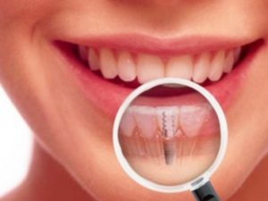zubni-implanti