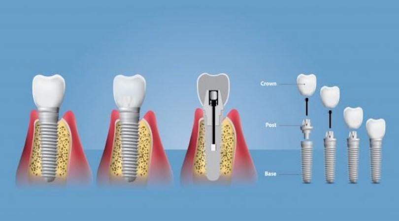 ugradnja-implanta-graficki-prikaz