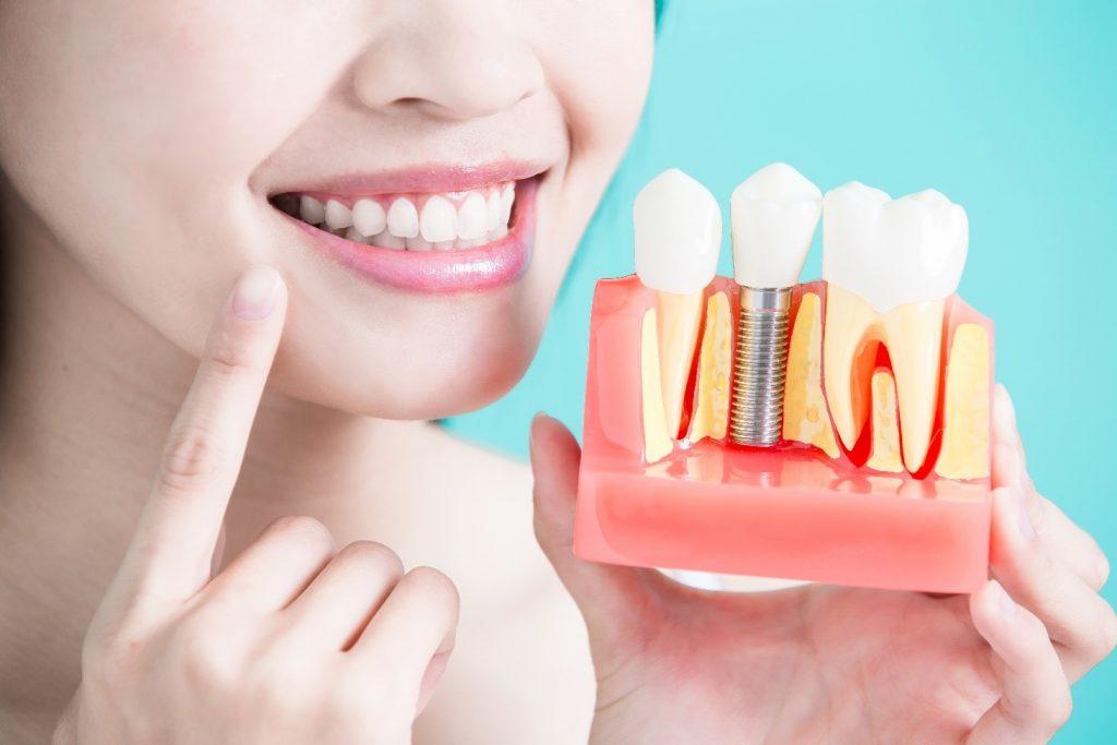 zubni-implanti-prikaz