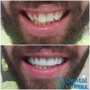keramicke-fasete-za-zube