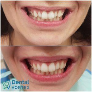 ispravljanje-zuba-folijama-pre-posle