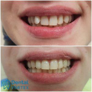 ispravljenje-zuba-folijama