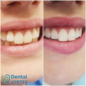 ispravljanje-zuba-folijama