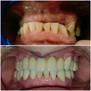 zubni-implanti-pre-posle