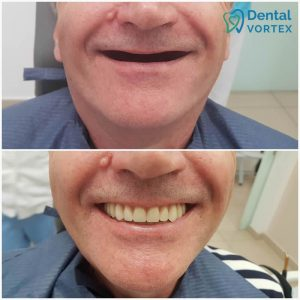 totalna-proteza-zuba-efekat-pre-i-posle