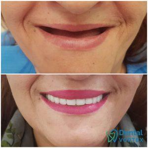 totalna-proteza-zuba-pre-i-posle-efekat