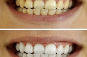 Izbeljivanje-zuba-kurkumom-pre-i-posle-efekat