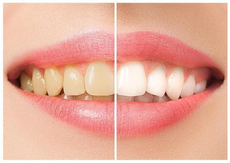 olovka-za-beljenje-zuba