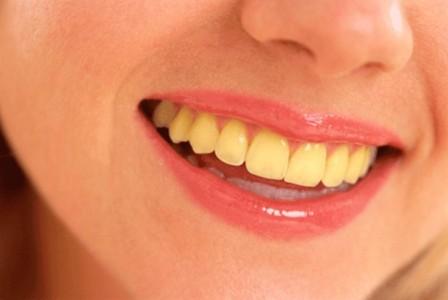žuti-zubi-osmeh-usta-devojke
