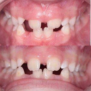 operacija-frenuluma-dental-vortex