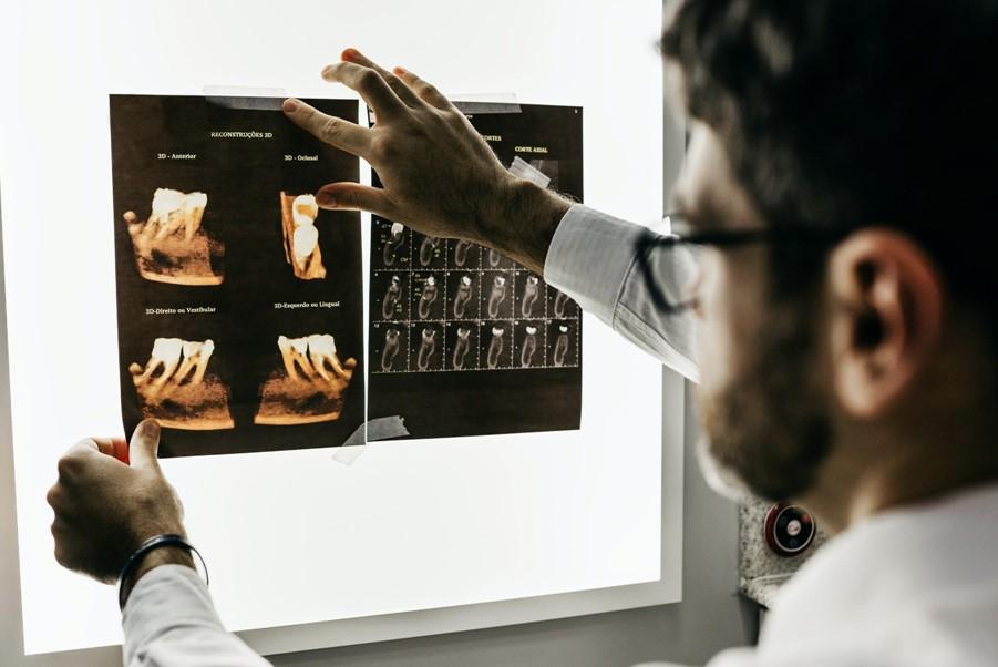 stomatolog-snimak-zuba-karijes